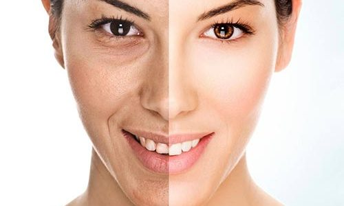 How To Treat Hyperpigmentation With Licorice Extract