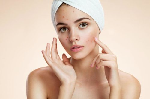 Top 10 Tips to Treat Acne And Pimples