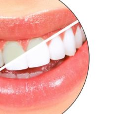 Best Ways to Whiten Your Teeth