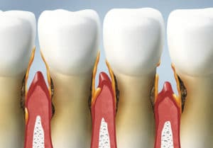 Natural Remedies For Weak Gums